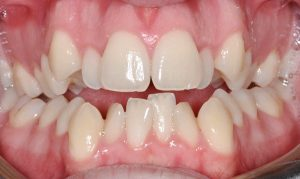 jagged overcrowded teeth
